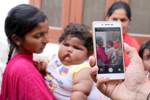 Este bebé pesa lo mismo que un niño de cuatro años