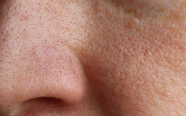 Cómo Cerrar Y Tratar Los Poros Dilatados Con Remedios Naturales