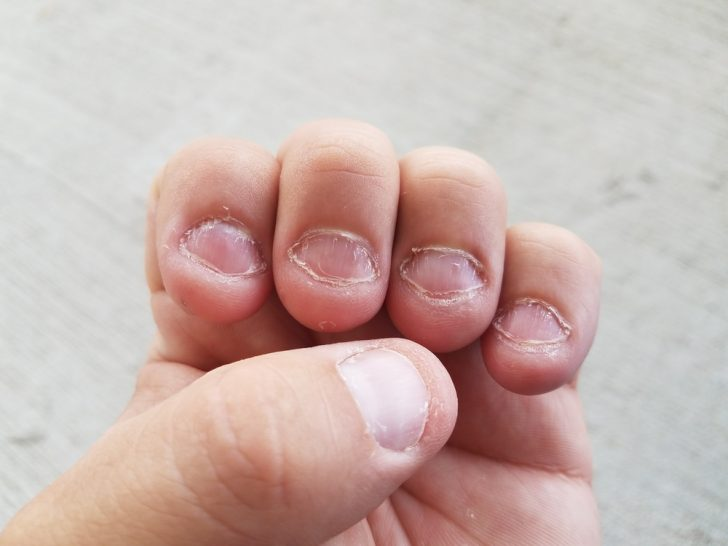 Estas son las 6 razones por las cuales no deberías morderte las uñas