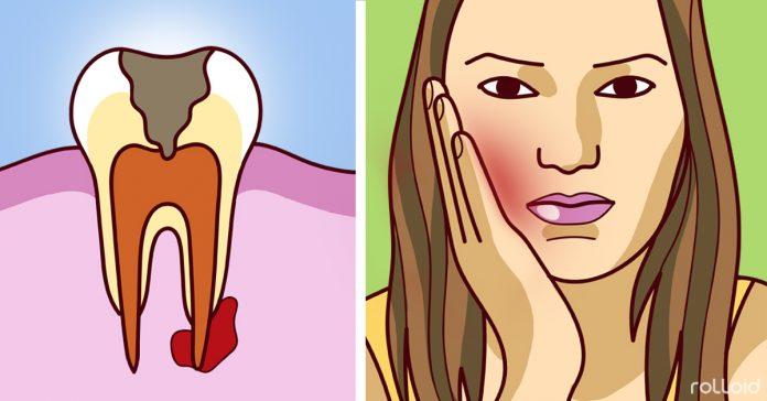 sintomas absceso dental tratarlo emergencia banner