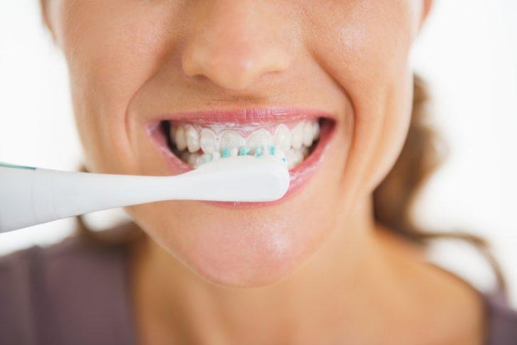 trucos del cepillado de dientes necesarios para conseguir una sonrisa perfecta 03