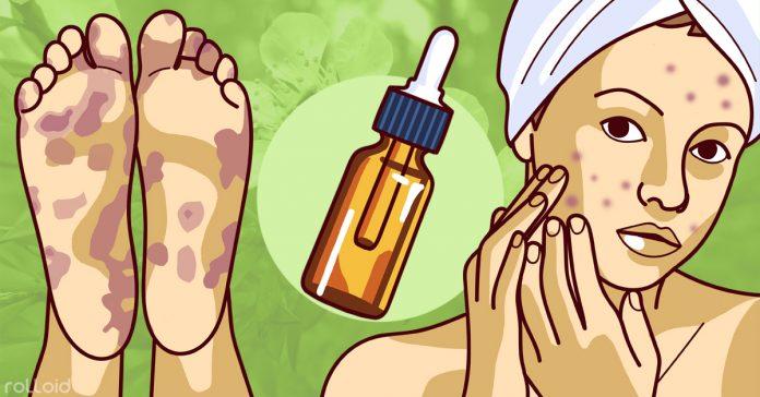 10 impresionantes usos del aceite de arbol de te banner