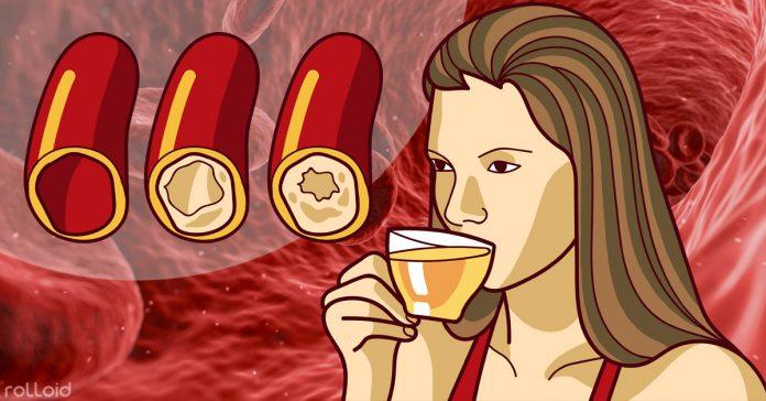 limpia tus arterias consumiendo alguno de estos 5 alimentos banner
