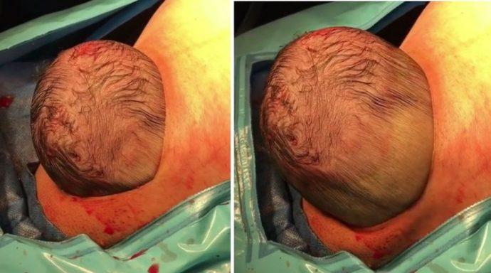 Un bebé saca su pequeña cabeza en el parto por cesárea que los médicos han grabado en directo