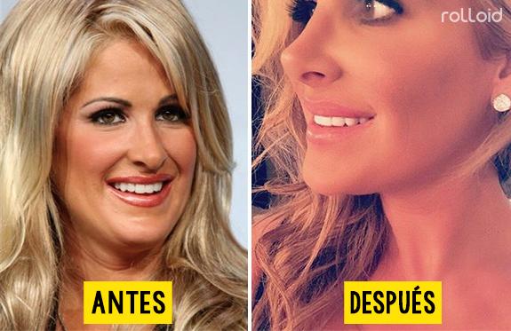 10 actrices que niegan que se hayan operado la cara pero sus fotos dicen lo contrario 152297
