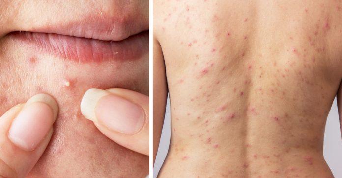 acne zonas banner