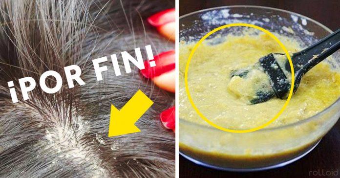 remedios trucos eliminar la caspa del pelo cabello banner