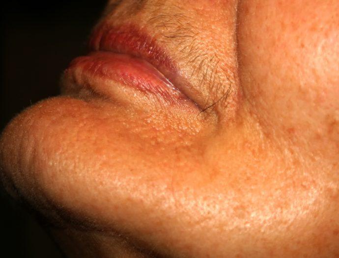 vello facial menopausia
