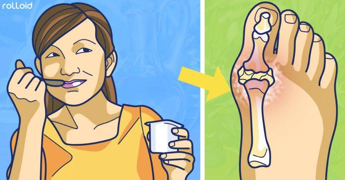 9 maneras de reducir el acido urico banner