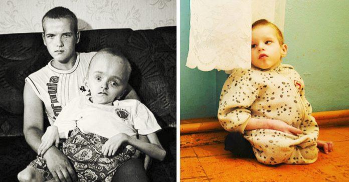 casos historias ninos afectados chernobyl banner