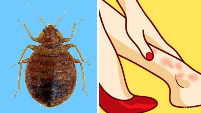 8 Trucos rápidos para identificar las picaduras de insectos más comunes y aliviarlas rápidamente
