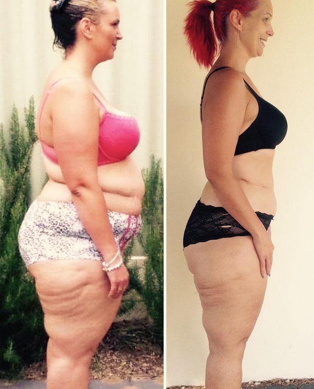 Una mujer que pierde 70 kilos y acaba con su antigua vida quitando 4 alimentos