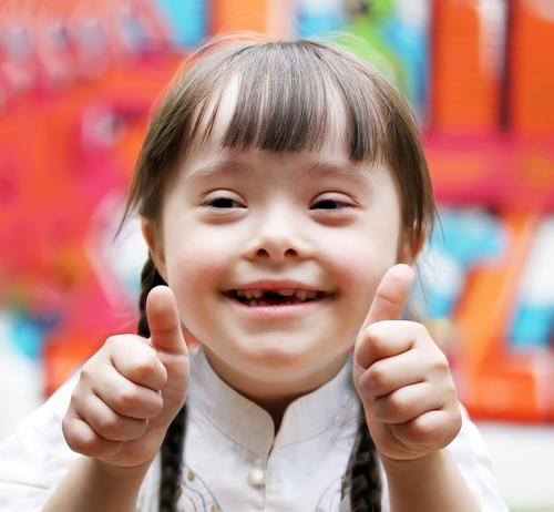 10 curiosidades que no conocias sobre el sindrome de down 168361