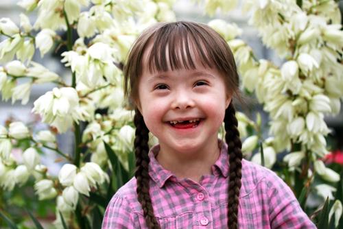 10 curiosidades que no conocias sobre el sindrome de down 168364