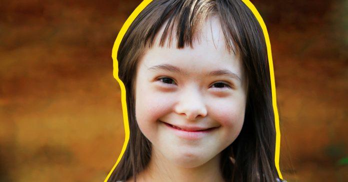10 curiosidades que no conocias sobre el sindrome de down banner