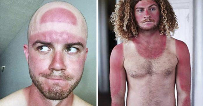 20 quemaduras solares con las que no podras parar de reir banner