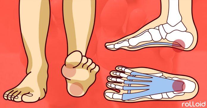 6 razones principales por las que te duelen los pies banner 1