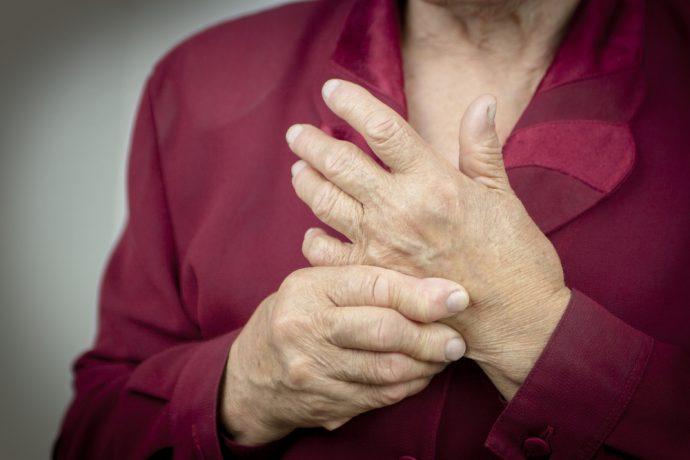 artritis dos