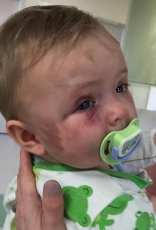Una madre se sale con la suya después de golpear cruelmente a su hija de 8 meses