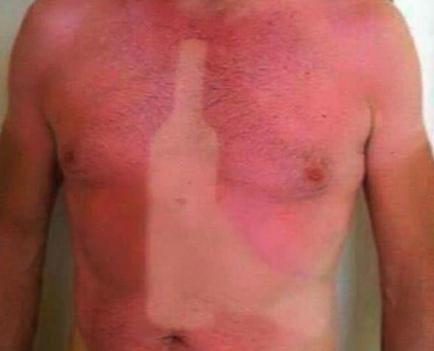 """20 Divertidos """"Tatuajes"""" de personas que se quedaron demasiado tiempo al sol"""