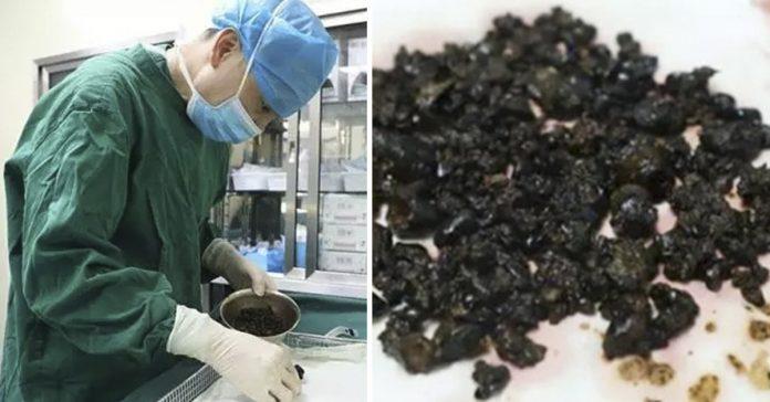 los medicos encontraron esto en el cuerpo de una mujer y todo por no desayunar banner