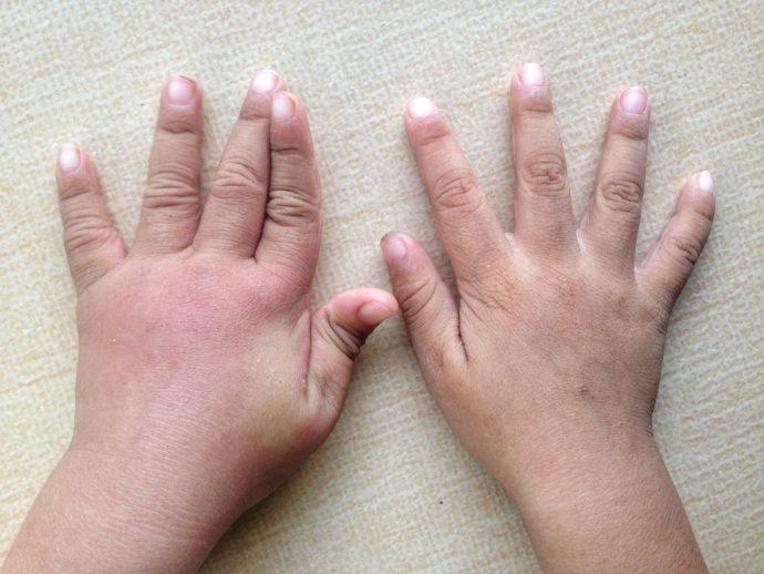 manos hinchadas