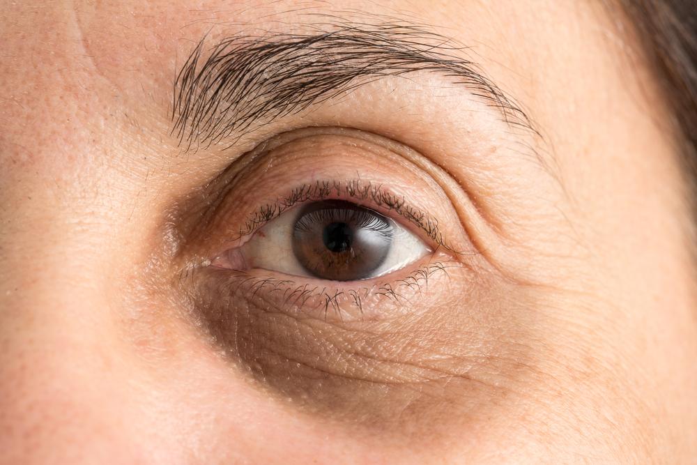 8 Trucos para eliminarte las ojeras de la cara fácilmente con cosas de casa