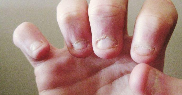 3 Razones por las que a veces puedes tener ganas incontrolables de morderte las uñas