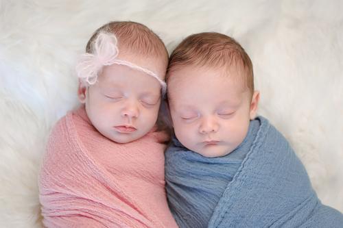 tipos raros de gemelos y mellizos turner