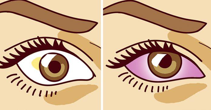 12 sintomas ojos banner