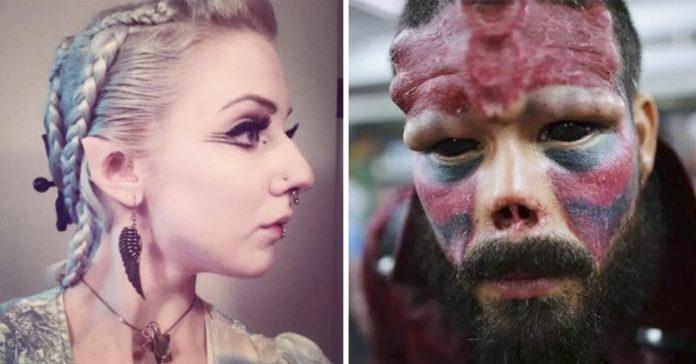16 personas que usaron la cirugia para transformar su cuerpo por complet banner