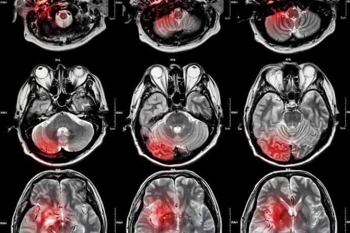 7 Señales inevitables que indican cómo saber al instante si estás a punto de tener un infarto cerebral