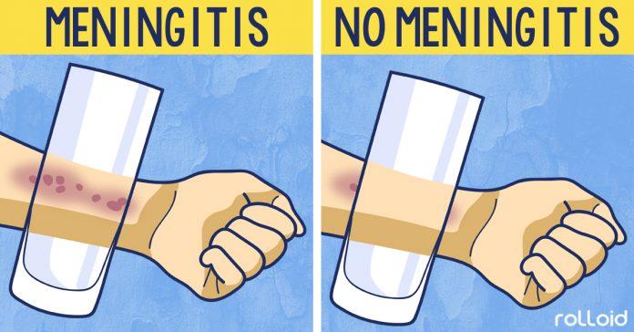 8 sintomas meningitis banner