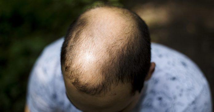 alimentos que pueden provocar una caida del pelo banner 1