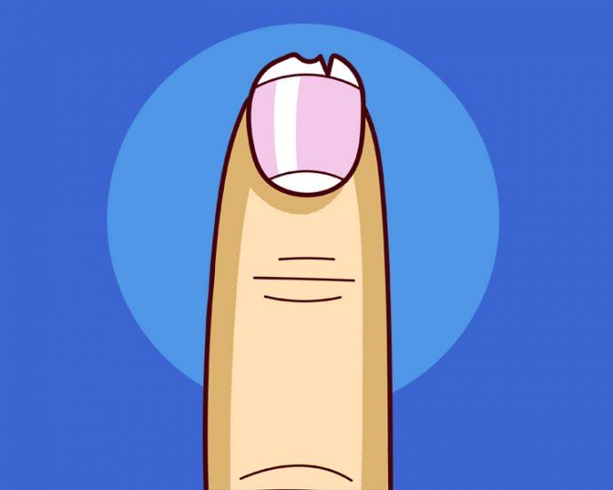 8 Cosas típicas que ocurren en las uñas y sus causas más comunes