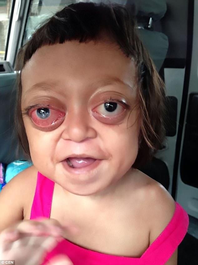 Anabelle, la niña de 2 años torturada y usada por la mafia para sacar dinero de su extraña enfermedad