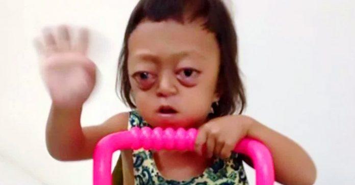 anabelle la nina explotada torturada y vendida por su extrana enfermedad banner