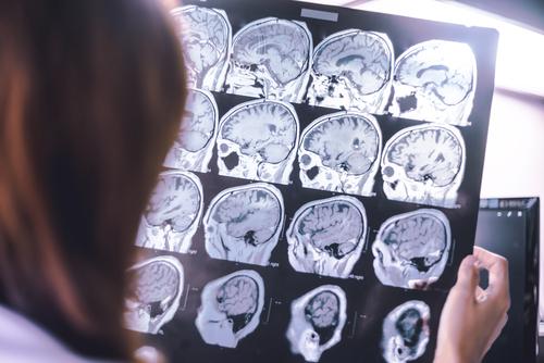 conoce la diferencia entre la demencia y el alzheimer 190943