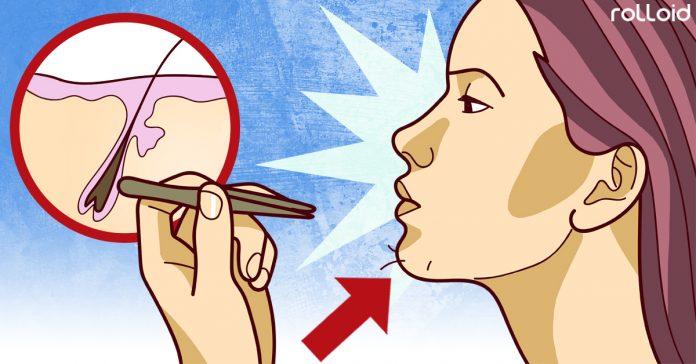 el vello en el menton de la mujer puede ser sintoma de esta enfermedad banner