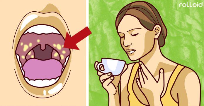 10 remedios naturales para dolor de garganta banner