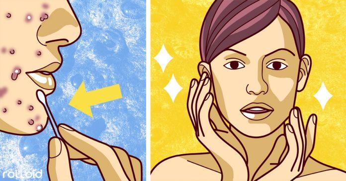 causas del acne y remedios para eliminarlo definitivamente banner