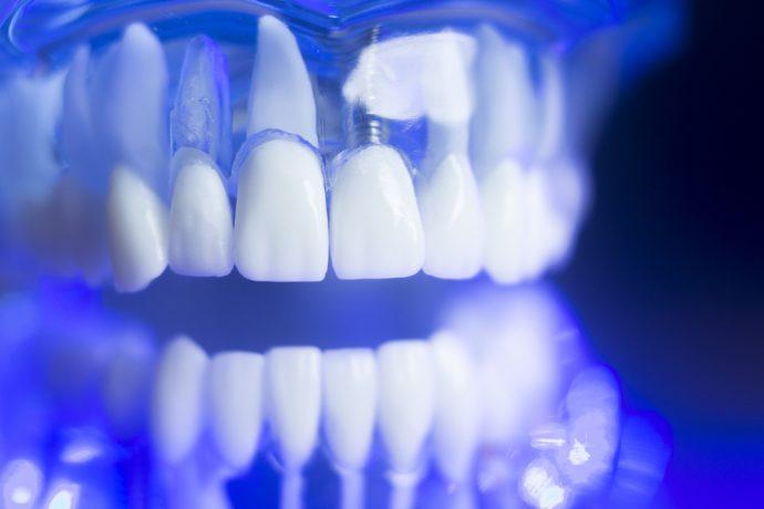 dientes tornillo
