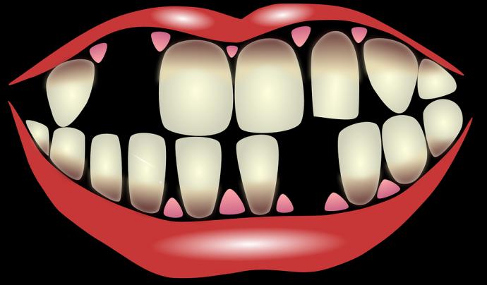 el significado de algunos de los suenos mas comunes dientes