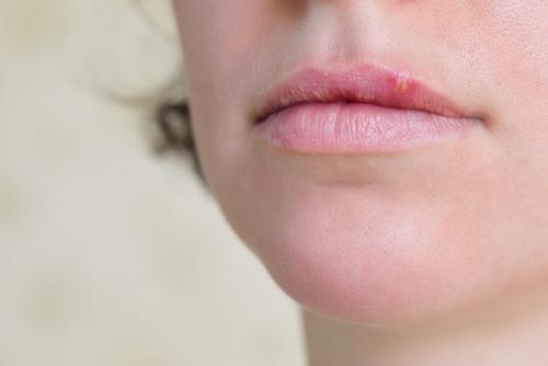 herpes labial 10 cosas que debe saber sobre las ampollas bucales causadas por el virus del herpes 199680