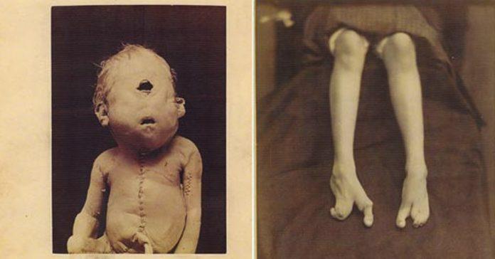 imagenes perturbadoras historia medicina banner