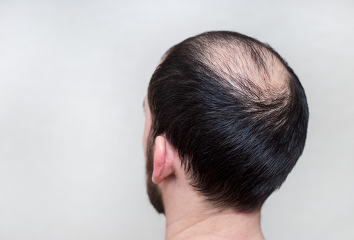 la cura para la calvicie podria estar a la vuelta de la esquina 206619