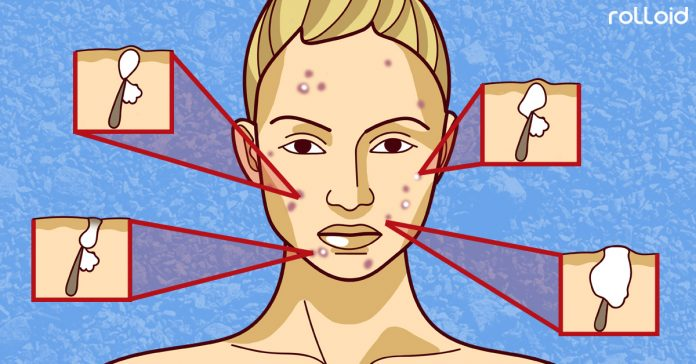 los dermatologos aseguran que hay 6 tipos de granos y se tratan d nueva distinta banner