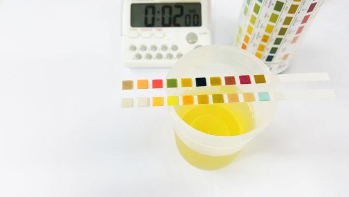 Los 10 Colores que puede tener la orina y el significado de cada una de ellas en nuestra salud