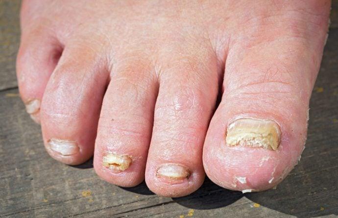 5 Cosas que debes hacer con tus pies para que no salgan hongos en las uñas