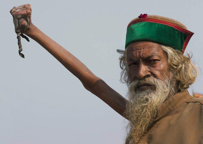 20 Personas con las anomalías más raras del planeta
